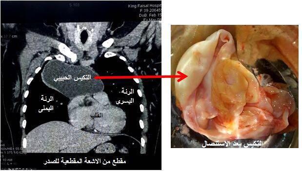 نجاح جراحة نادرة لاستئصال أكبر تكيس في العالم من صدر أربعينية بـ #الطائف
