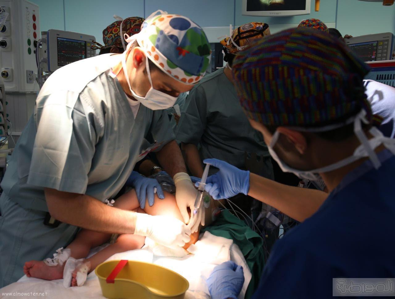 نجاح عملية التوأم فاطمة ومشاعل (6)