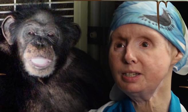 هجوم الشمبانزي