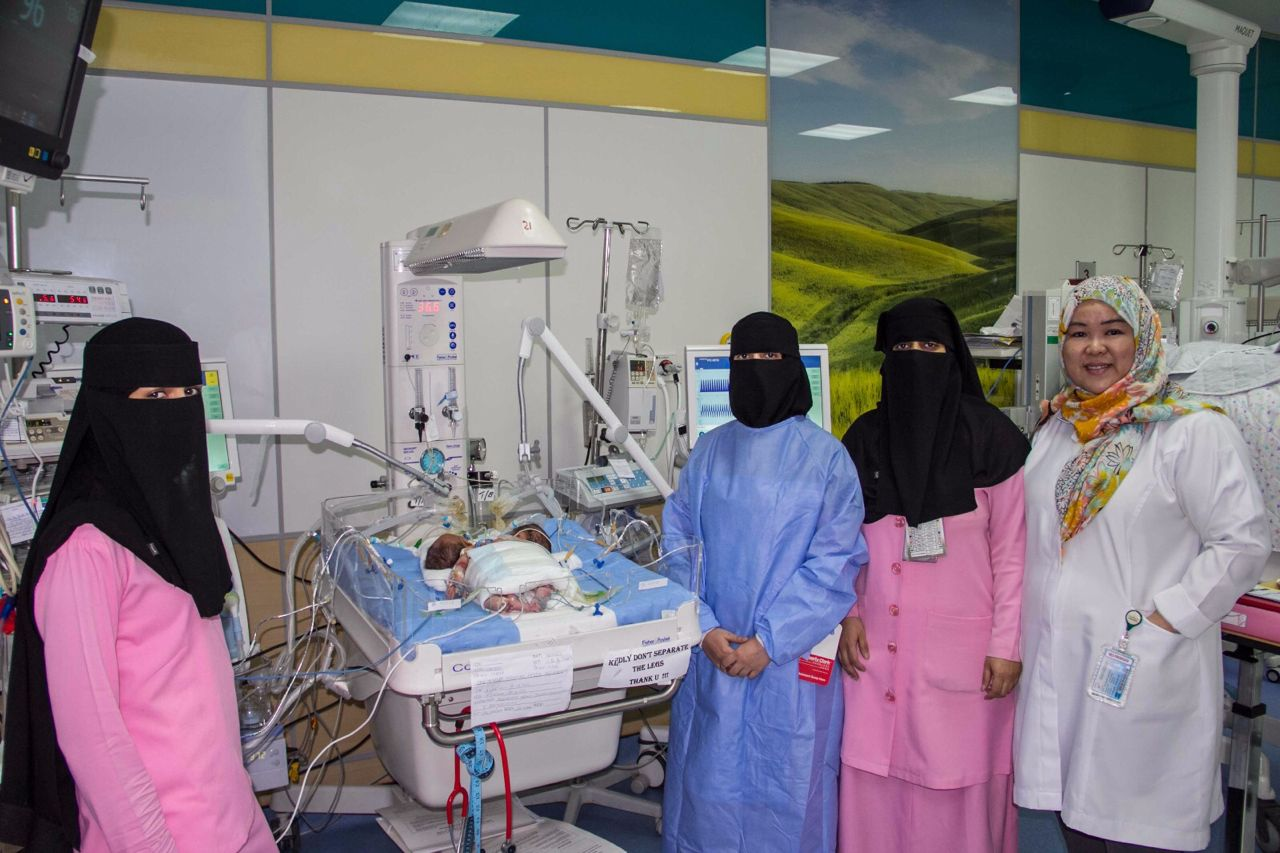 ولادة توأم سيامي يمني الجنسية بمستشفى أبها للولادة والأطفال (1)