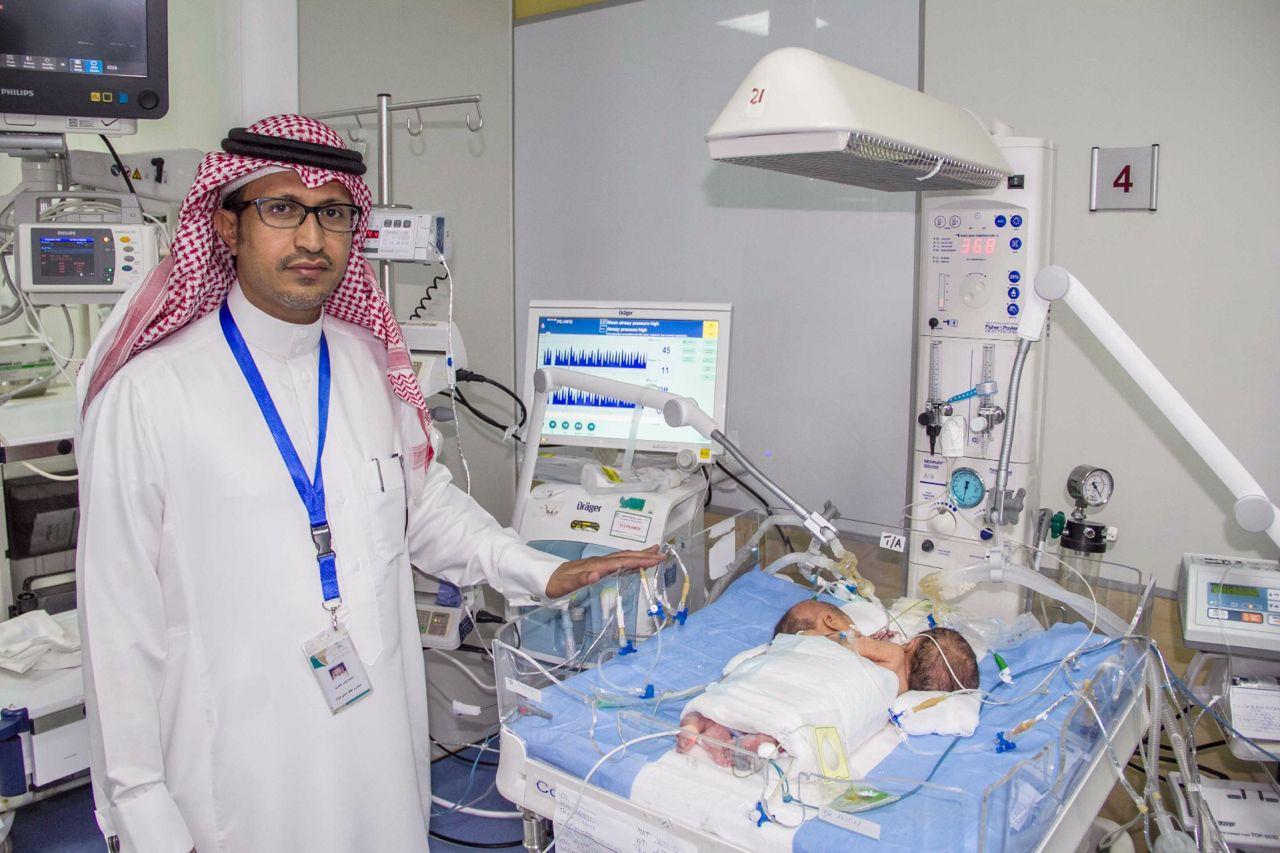ولادة توأم سيامي يمني الجنسية بمستشفى أبها للولادة والأطفال (2)