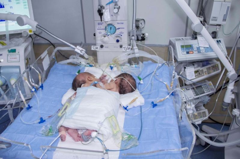 ولادة توأم سيامي يمني الجنسية بمستشفى أبها للولادة والأطفال (3)