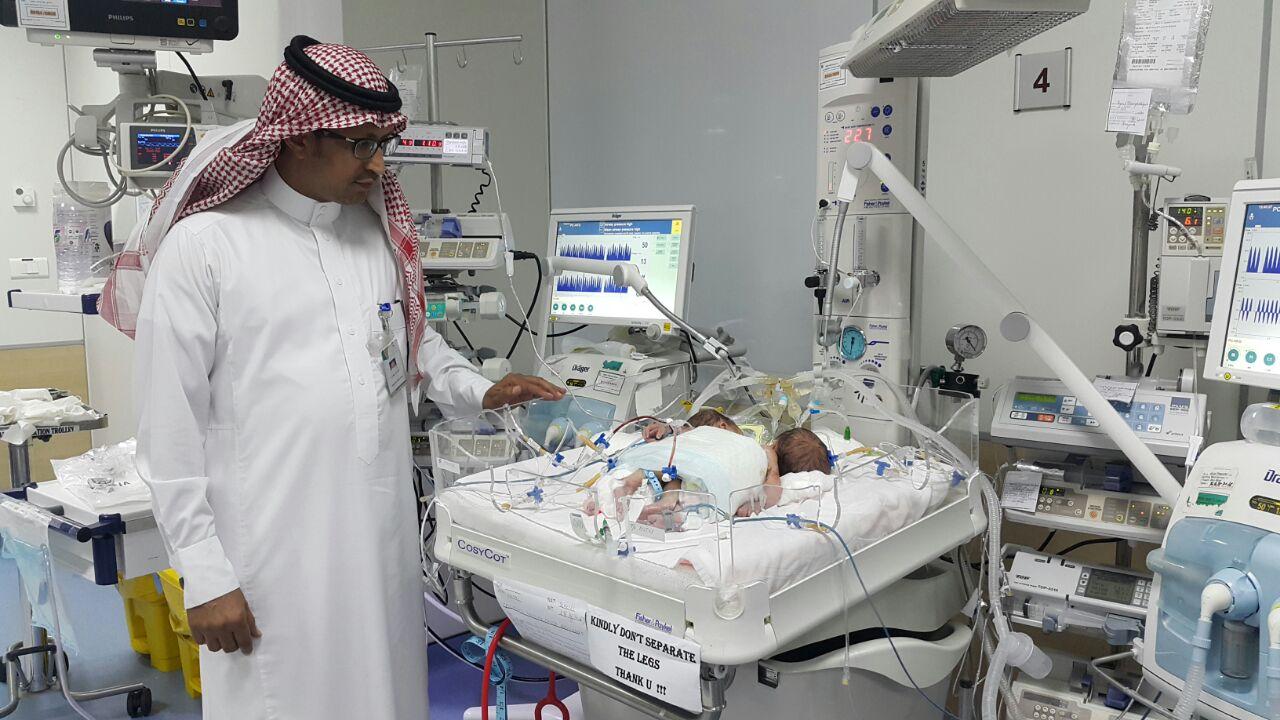 ولادة توأم سيامي يمني الجنسية بمستشفى أبها للولادة والأطفال (5)
