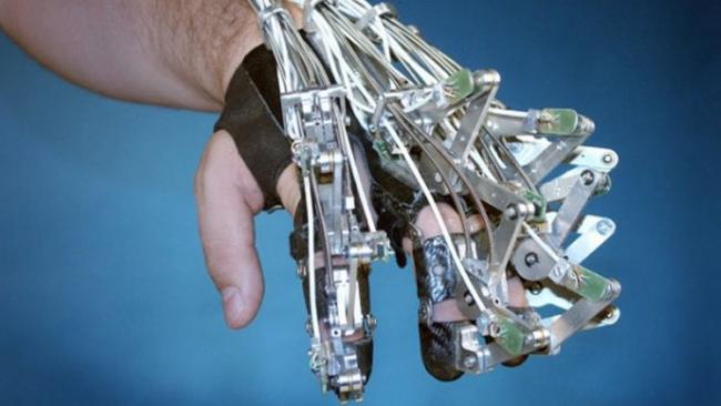 الأطراف-الاصطناعية