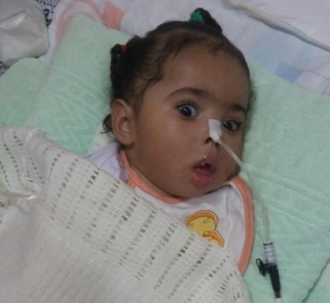 """""""ميار"""".. طفلة توقف قلبها 21 دقيقة فكلف علاجها أكثر من نصف مليون !"""