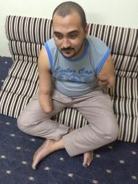 مصري فقدَ يديه بصعق كهربائي يحلم بأطراف صناعية