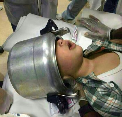 صحة القنفذة تنفي إنقاذها طفلاً علق رأسه في قدر ضغط - المواطن