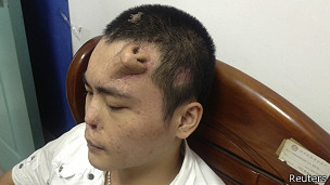130926103046_xiaolians_forehead_nose_304x171_reuters