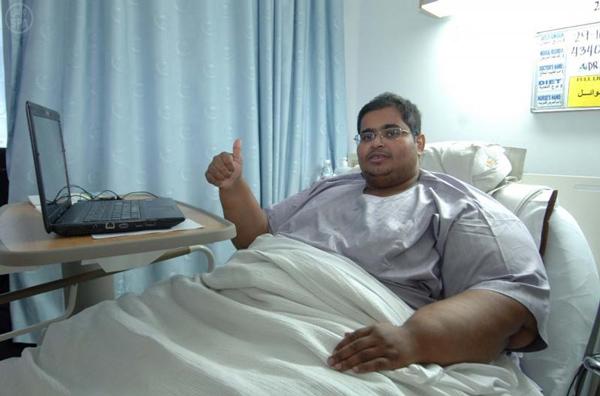 نجاح أول عملية جراحية لمريض السمنة الصميلي في مدينة الملك فهد الطبية