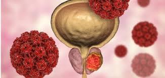 اكتشاف جين جديد يعزز من انتشار سرطان البروستاتا - المواطن