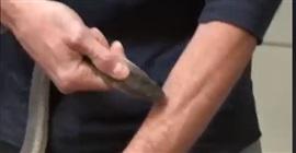 رجل يتعرض لـ160 عضة من ثعابين سامة.. شاهد ما جرى له! - المواطن