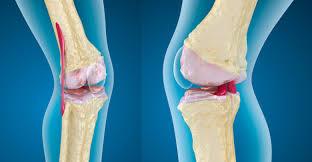 نصيحة ذهبية.. الرياضة تحميك من مرض تآكل مفصل الركبة - المواطن