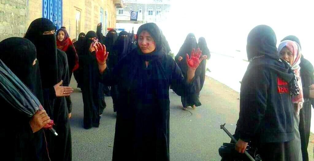 تجاهل انتهاكات الحوثيين بحق الأطفال والنساء يغري الانقلابيين بمزيد من الجرائم
