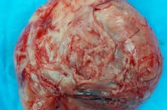 تدخل جراحي ينقذ حياة امرأة من ورم ليفي بالرحم بطول 14 سم - المواطن