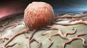 الخضيري يحدد أسباب الإصابة بالسرطان.. الأخيرة أخطرها - المواطن