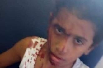 صور صادمة لحادث استهداف حافلة أقباط في المنيا المصرية - المواطن