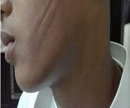 تفاصيل جديدة في واقعة الاعتداء على طالب بسلك على وجهه - المواطن