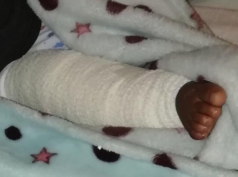 صحة #بيشة تعلن نتائج التحقيق في شكوى تعرض طفل لقطع بأربطة الركبة