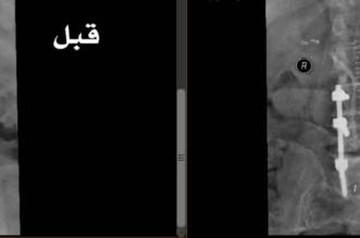 سعود الطبية تنهي معاناة ستيني من آلام الظهر وصعوبة المشي - المواطن