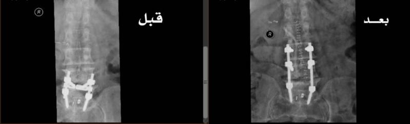 سعود الطبية تنهي معاناة ستيني من آلام الظهر وصعوبة المشي