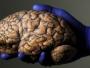 للمرة الأولى عالميًّا.. طبيب يجري جراحة دماغية لمريض على بعد 3 آلاف كم