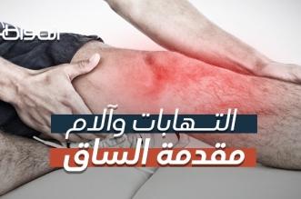 """فيديو """"المواطن""""..  أسباب آلام مقدمة الساق وطرق العلاج - المواطن"""