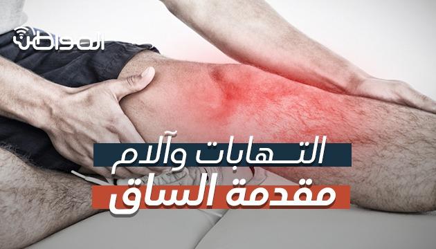 """فيديو """"المواطن""""..  أسباب آلام مقدمة الساق وطرق العلاج"""