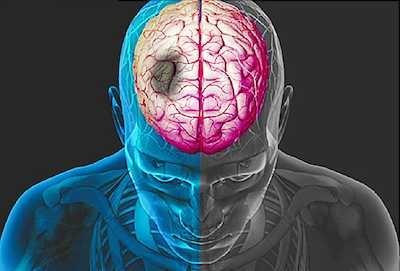 سببان لزيادةجلطات القلب والدماغ