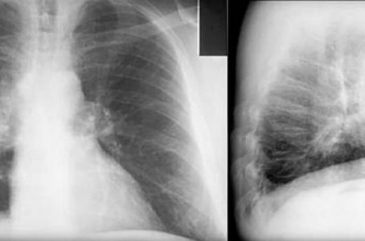 علاج جديد وفعال لسرطان الرئة - المواطن