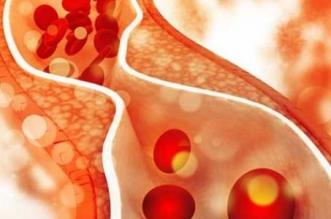 مخاطر الدهون الثلاثية وطرق التخلص منها - المواطن