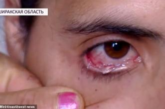 فيديو.. امرأة تبكي دموعًا كريستالية - المواطن