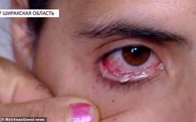 فيديو.. امرأة تبكي دموعًا كريستالية
