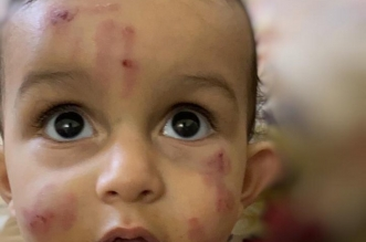 لجنة للتحقيق في تعنيف طفل الحضانة - المواطن