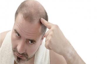 تساقط شعرك قد يخفي مشكلات صحية خطيرة - المواطن
