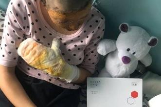يشعل النار في طفلته بعدما حاولت إنقاذ والدتها من بطشه - المواطن