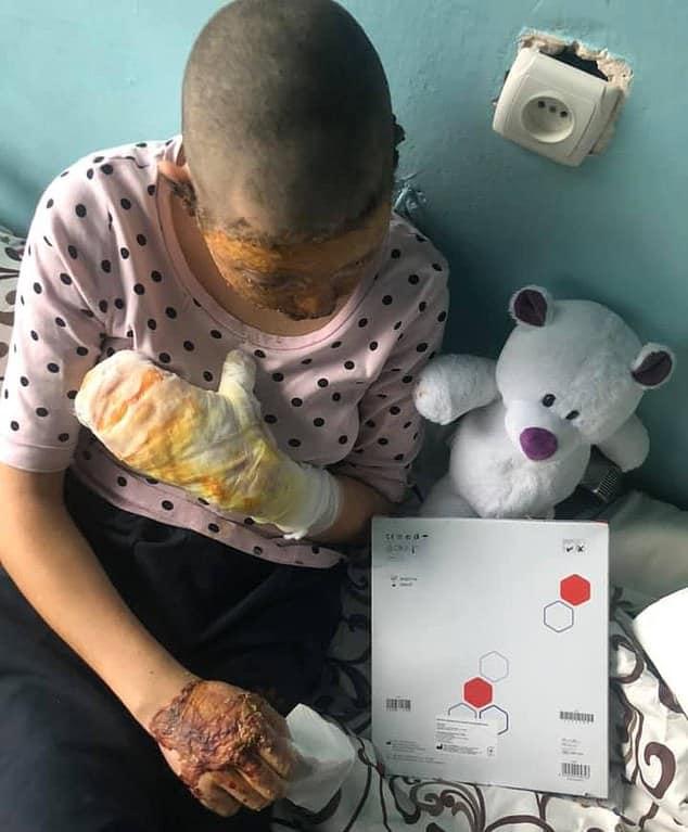 يشعل النار في طفلته بعدما حاولت إنقاذ والدتها من بطشه