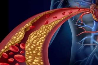نصائح مهمة لتخفيض الكولسترول قبل تناول الأدوية - المواطن