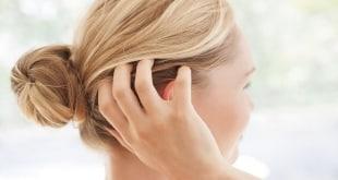 أسباب حكة فروة الرأس وعلاجها