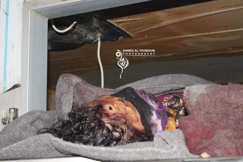 مجزرة شنيعة.. صاروخ حوثي يقصف سجن تعز ويقتل 30 امرأة