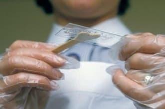 اختبار جديد لعنق الرحم .. واستشاري يكشف خفايا الورم الحليمي - المواطن
