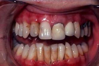 """مواد سامة في التدخين تهدد """"مينا"""" الأسنان - المواطن"""