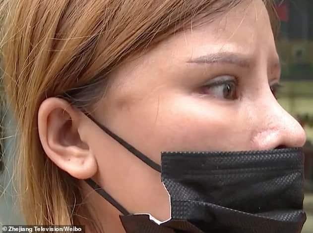 خطأ طبي يجعل وجه امرأة عابساً دائماً! - المواطن
