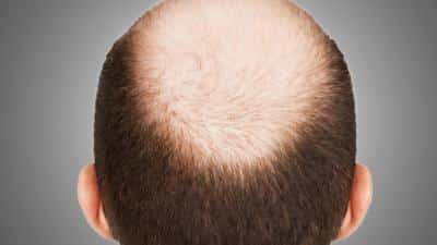 اكتشاف يعزز نمو الشعر ويسهل علاج الصلع - المواطن