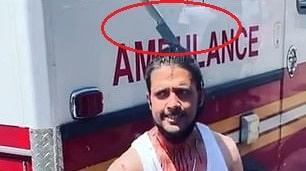 فيديو صادم.. رجل يتجول بسكين في رأسه بعد تصديه للدفاع عن امرأة