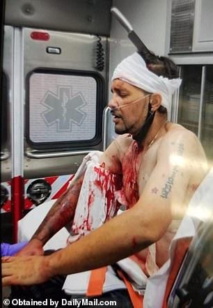 رجل يتجول بـ سكين في رأسه