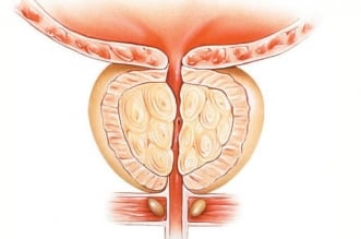 أعراض سرطان البروستات وطرق الوقاية منه - المواطن