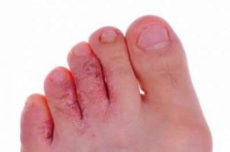 9 نصائح للوقاية من سعفة القدم - المواطن