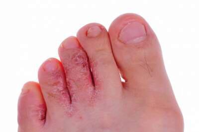 9 نصائح للوقاية من سعفة القدم