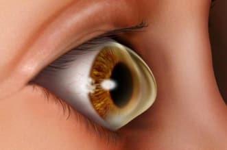 """استشاري لـ""""المواطن"""": قطرات العيون لا تعالج القرنية المخروطية - المواطن"""