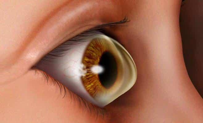 """استشاري لـ""""المواطن"""": قطرات العيون لا تعالج القرنية المخروطية"""